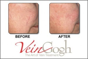 veinwave face laser