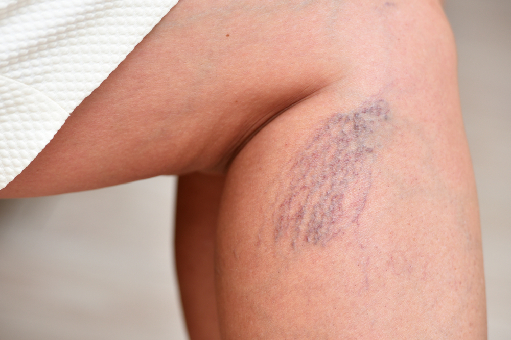 How Lakeway and Westlake,Texas Vein Treatment For Spider Veins Can Help Your Skin How Lakeway and Westlake,Texas Vein Treatment For Spider Veins Can Help Your Skin