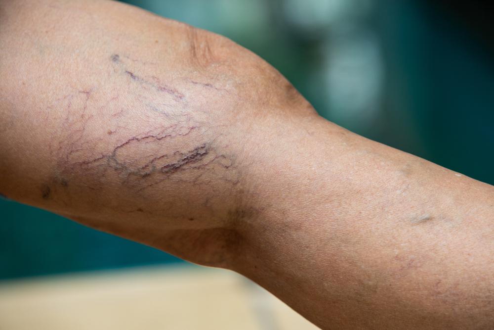 Types Of Spider Vein Treatments