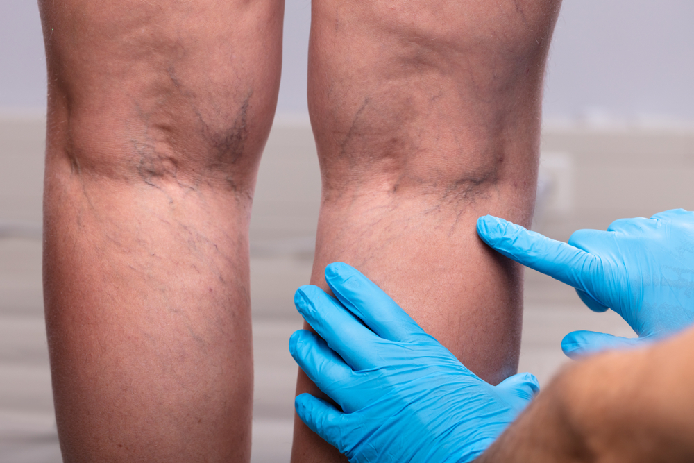 Frequently Asked Questions About Spider Vein Treatments