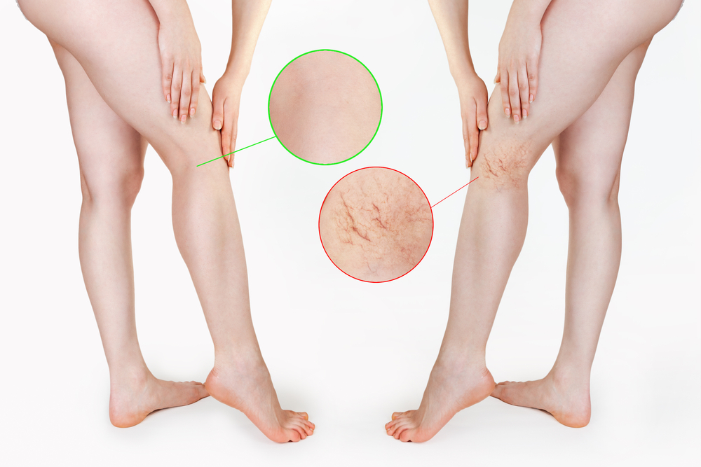 Before and after laser vein treatment