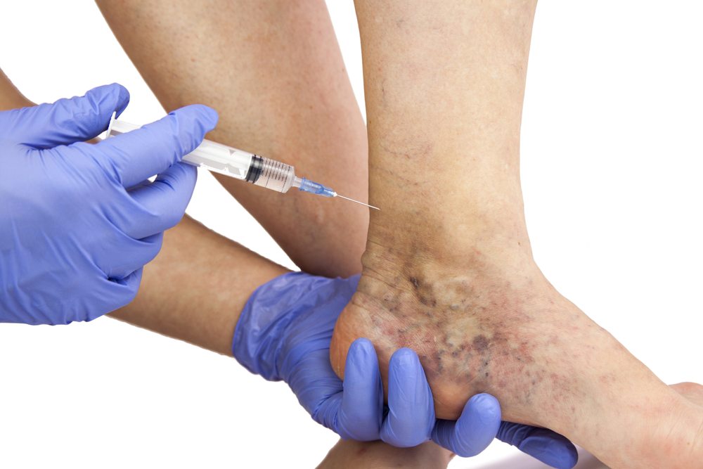 doctor performing varicose Vein treatment