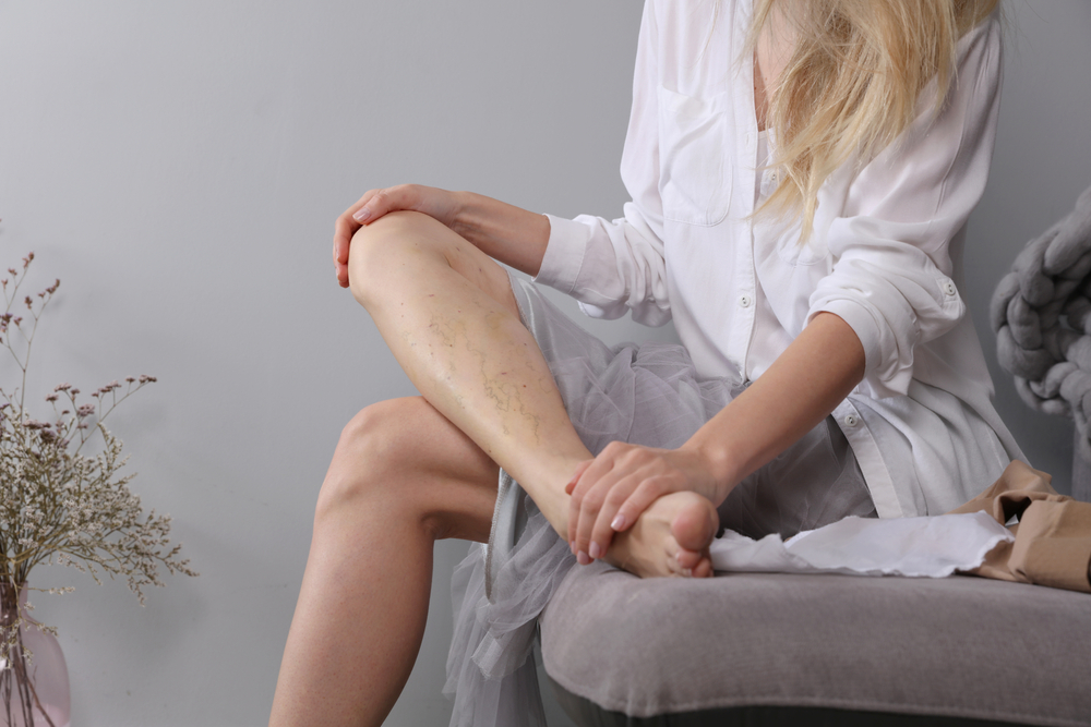 Tips In Looking For Varicose Veins Treatment near Round Rock, TX