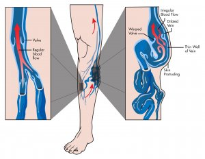 Image of Varicose Veins Removal Surgery