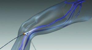 ClosureFast Procedure for Varicose Veins of Legs