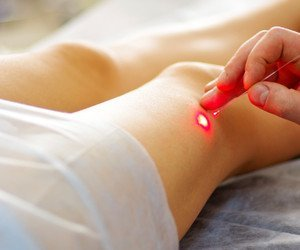 Cedar Park Texas Laser Vein Therapy Legs