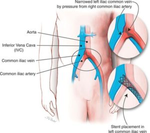 May Thurner Syndrome Stent Austin Texas