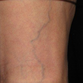 Leg Reticular Veins