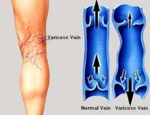 varicose veins and valve reflux