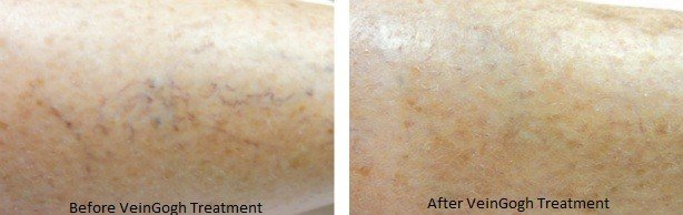 image of facial skin following VeinGogh vein treatment for face vein removal