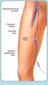 endovenous vein ablation treatments