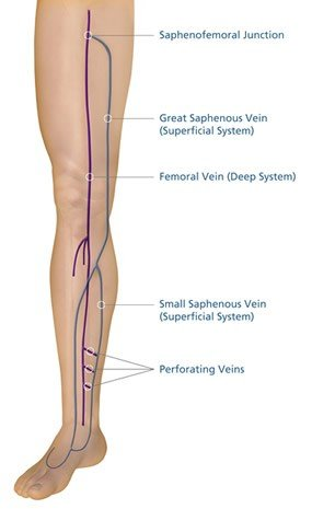 saphenous vein reflux disease