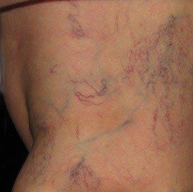 Spider Veins Leg treatment austin round rock texas