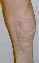 varicose veins legs removal austin texas