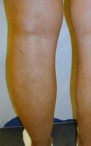 ugly leg veins austin