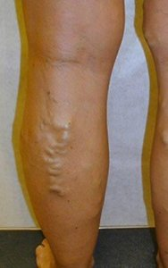 get rid bulging ugly painful leg veins