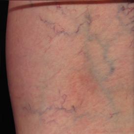 Leg Reticular Veins and Spider Veins