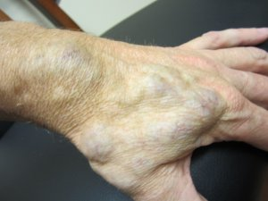 arteriovenous vascular malformation austin texas
