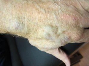 venous malformations treatments texas