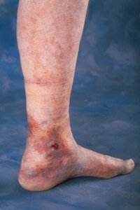 venous ulcer venous stasis ulcer therapy austin texas