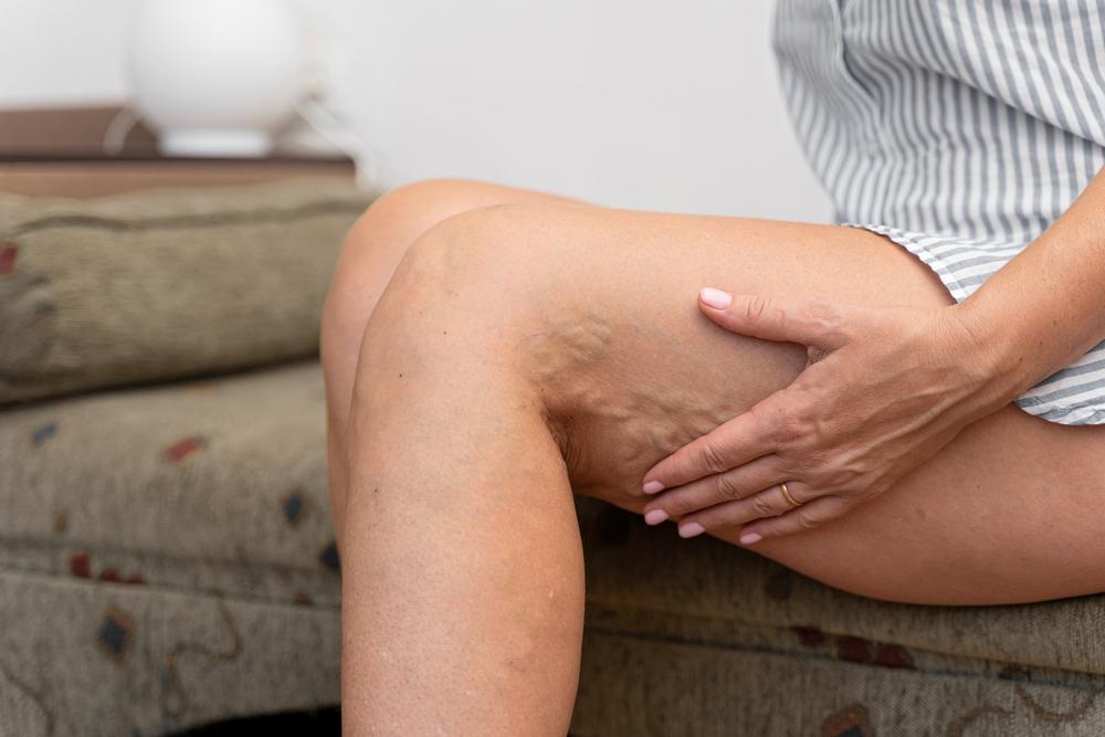 woman having pain in her leg veins
