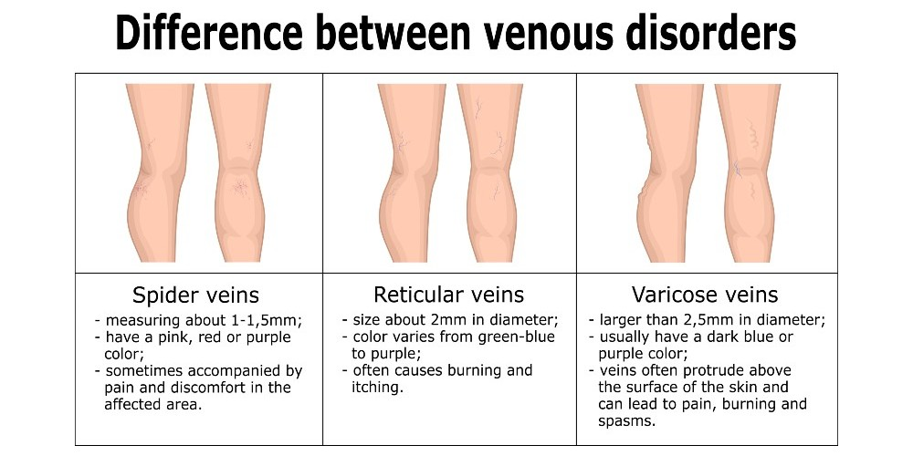 spider veins and varicose veins removal austin texas