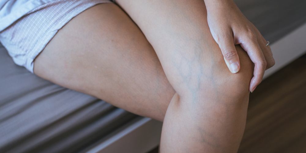 skin vein removal austin texas