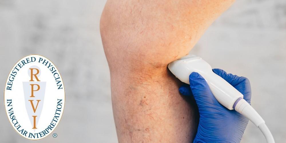 varicose vein venous duplex ultrasound test austin round rock texas