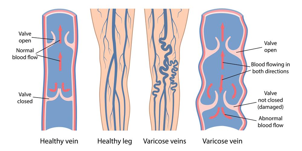 venous reflux disease vein valve insufficiency