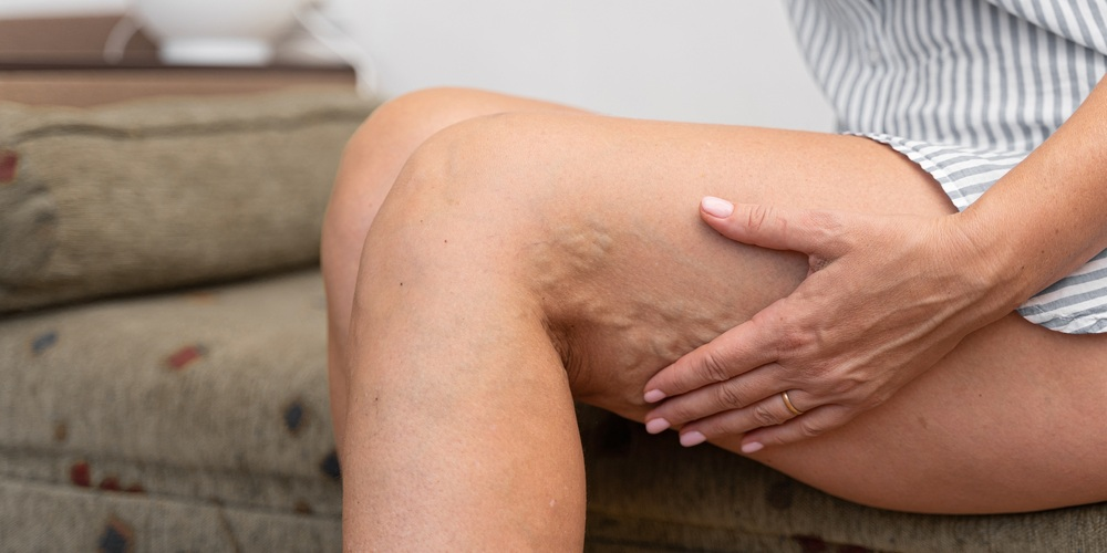 Woman,At,Home,With,Varicose,Veins.,Healthcare,Problem,,Thrombophlebitis,Issue.