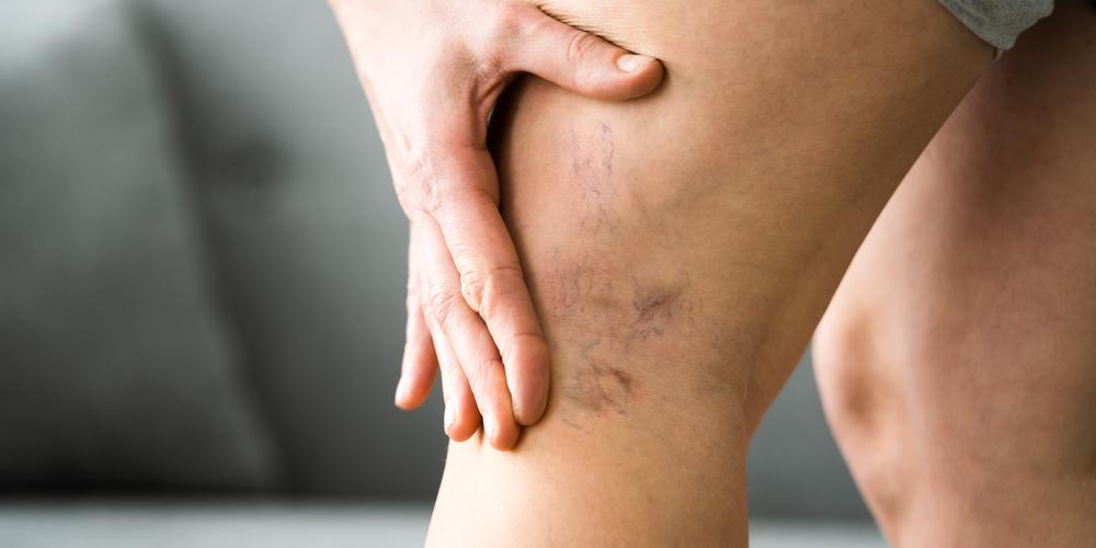 leg pain doctors clinics austin texas
