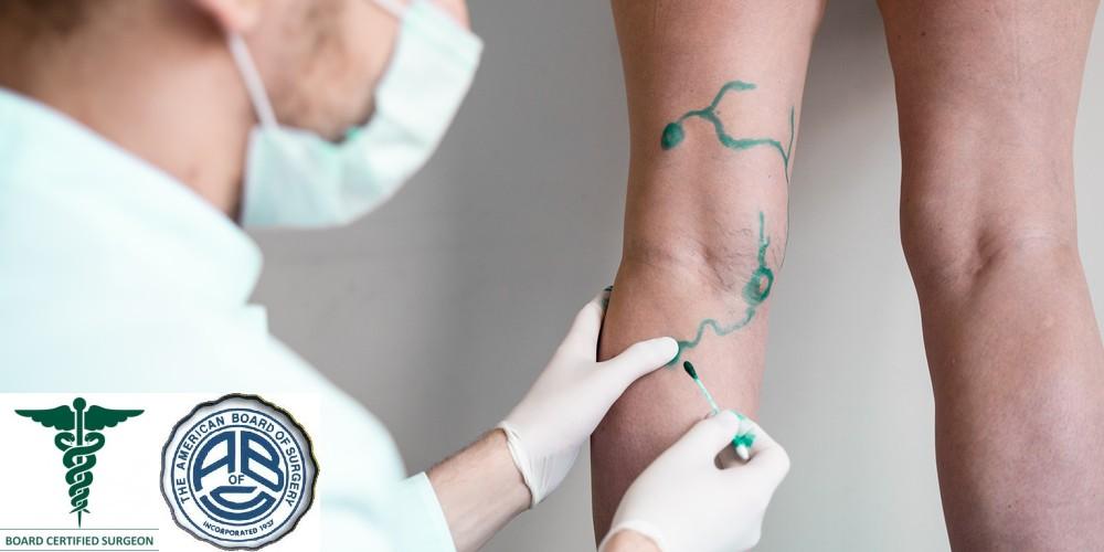 Vascular Surgeon and Phlebologist Austin