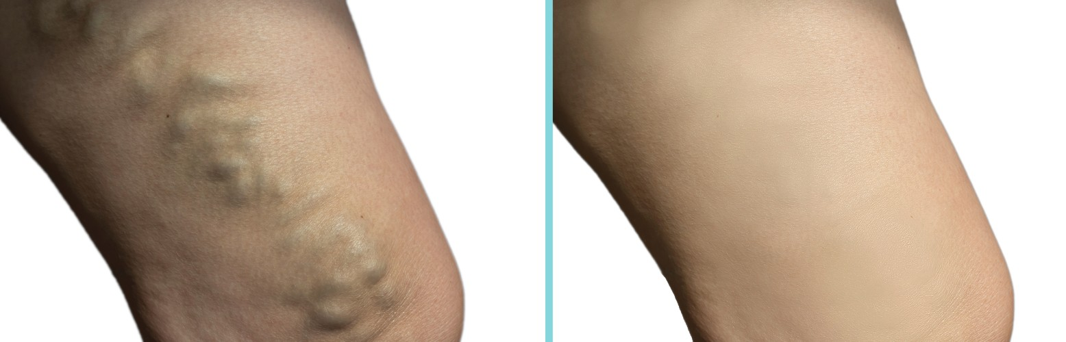 You Can Cure Your Legs and Rid Them of Bulging Ugly Veins!
