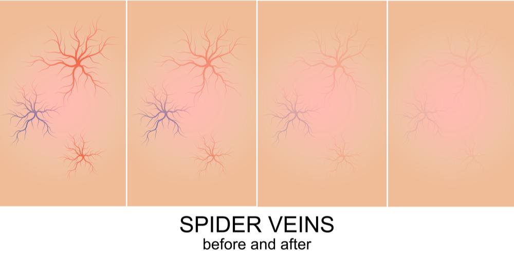 Cedar Park Texas Varicose Veins Spider Veins