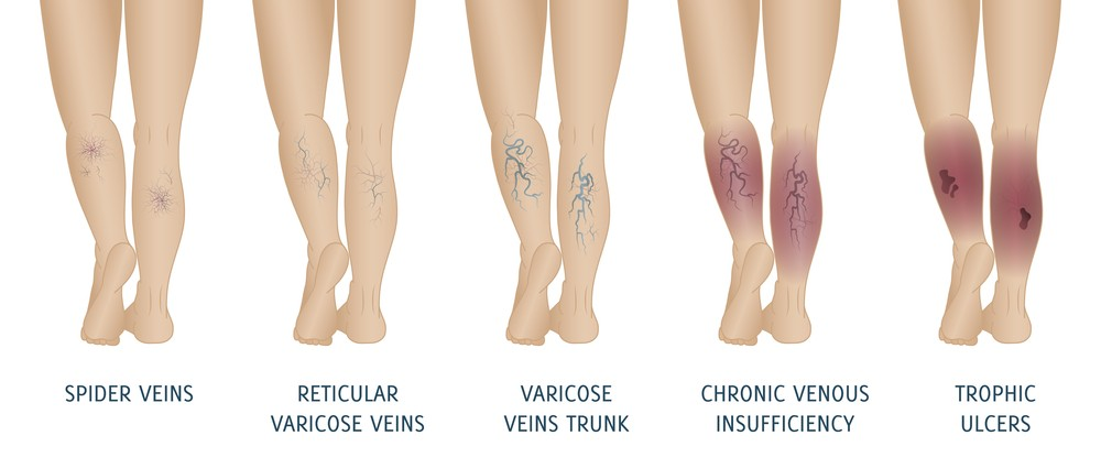 venous reflux test