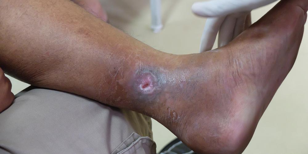 venous ulcer venous stasis ulcer therapy austin texas