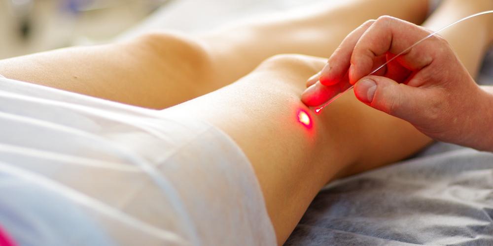 vein laser treatments austin texas
